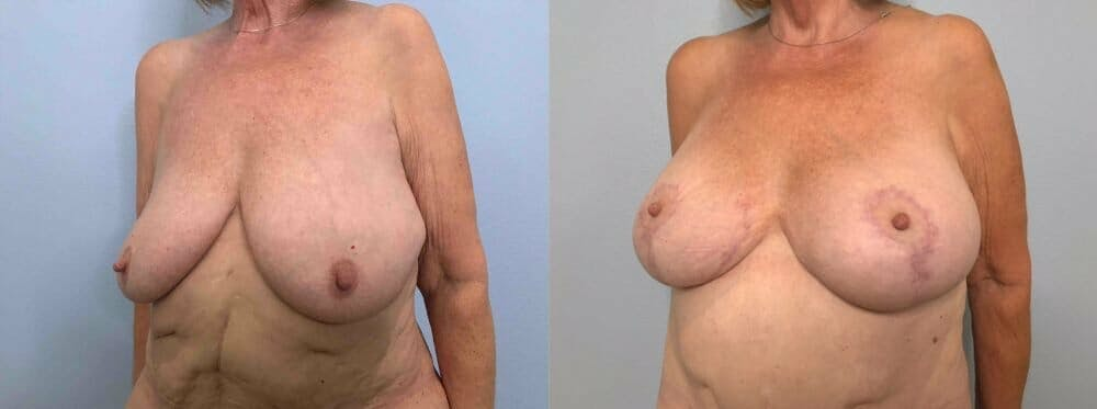 Breast Lift With Implants Gallery - Patient 47434217 - Image 2