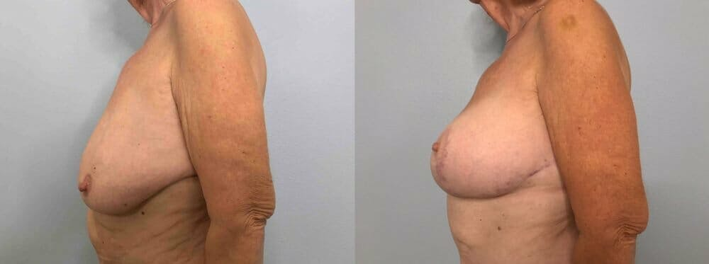 Breast Lift With Implants Gallery - Patient 47434217 - Image 3