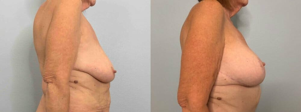 Breast Lift With Implants Gallery - Patient 47434217 - Image 4