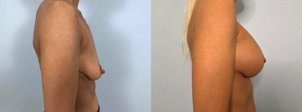 Breast Lift With Implants Gallery - Patient 47434220 - Image 3