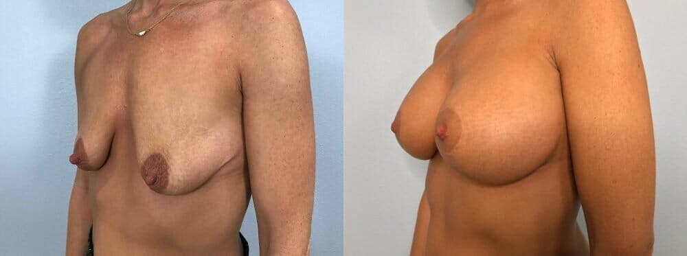 Breast Lift With Implants Gallery - Patient 47434220 - Image 4