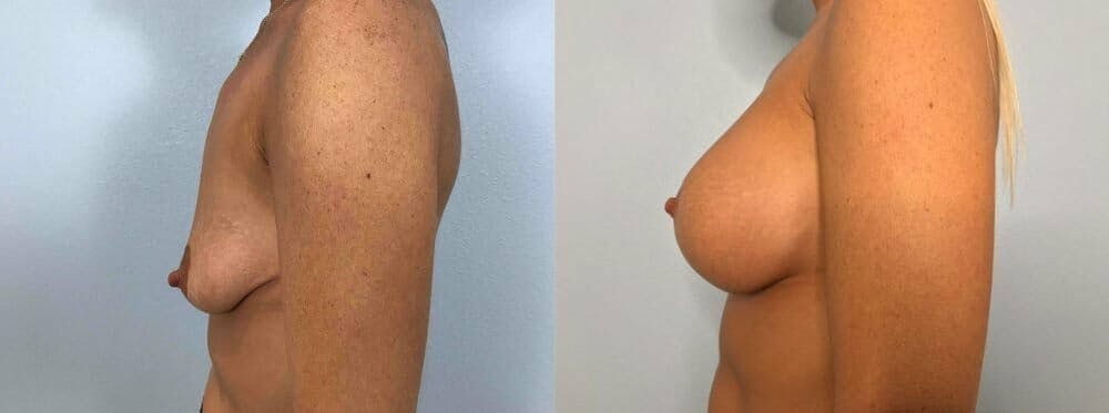 Breast Lift With Implants Gallery - Patient 47434220 - Image 5