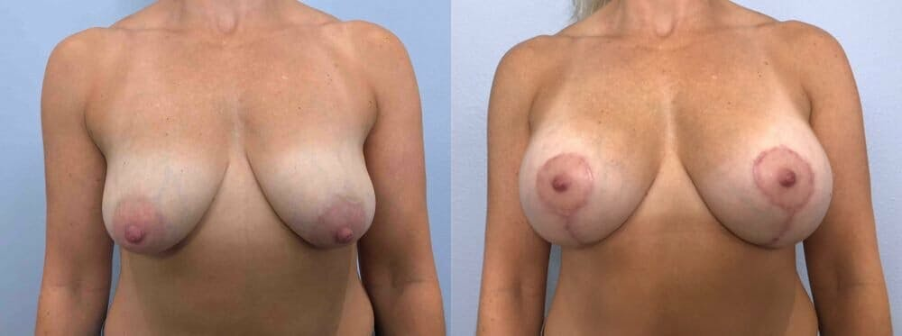 Breast Lift With Implants Gallery - Patient 47434227 - Image 1