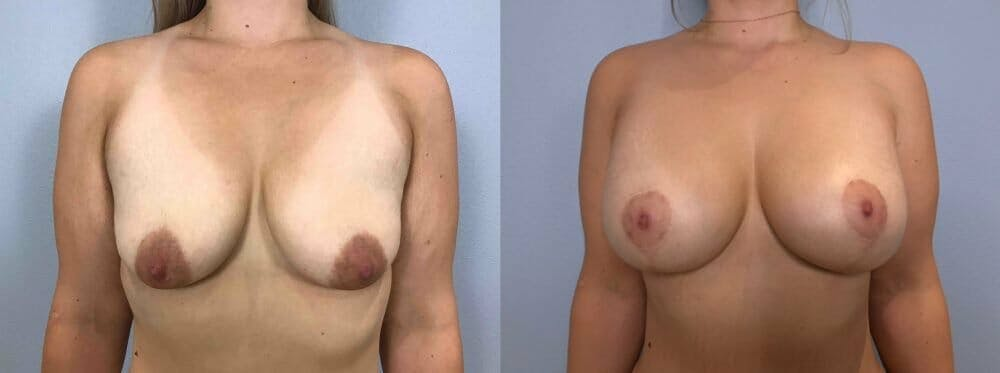 Breast Lift With Implants Gallery - Patient 47434229 - Image 1