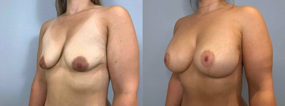 Breast Lift With Implants Gallery - Patient 47434229 - Image 2
