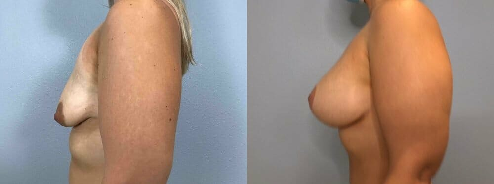 Breast Lift With Implants Gallery - Patient 47434229 - Image 3