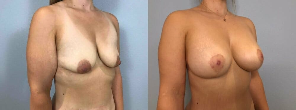 Breast Lift With Implants Gallery - Patient 47434229 - Image 4