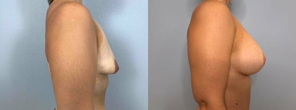 Breast Lift With Implants Gallery - Patient 47434229 - Image 5