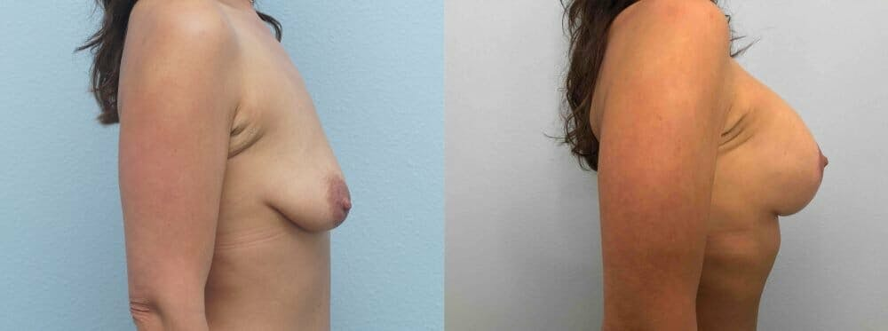 Breast Lift With Implants Gallery - Patient 47434234 - Image 3