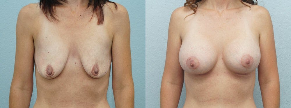 Breast Lift With Implants Gallery - Patient 47434236 - Image 1