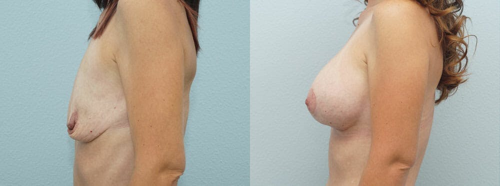 Breast Lift With Implants Gallery - Patient 47434236 - Image 2