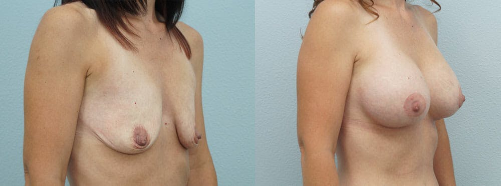 Breast Lift With Implants Gallery - Patient 47434236 - Image 4