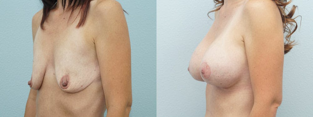 Breast Lift With Implants Gallery - Patient 47434236 - Image 5