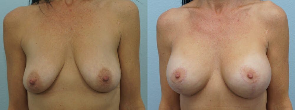 Breast Lift With Implants Gallery - Patient 47434237 - Image 1