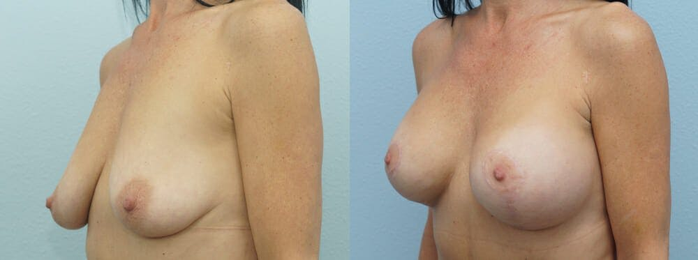 Breast Lift With Implants Gallery - Patient 47434237 - Image 2