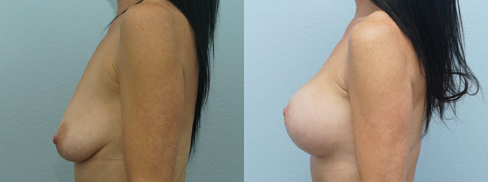 Breast Lift With Implants Gallery - Patient 47434237 - Image 3