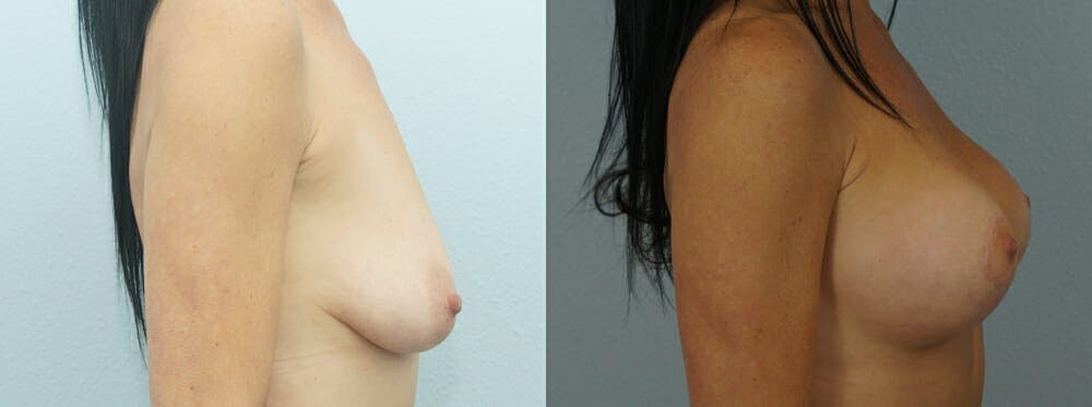Breast Lift With Implants Gallery - Patient 47434237 - Image 4