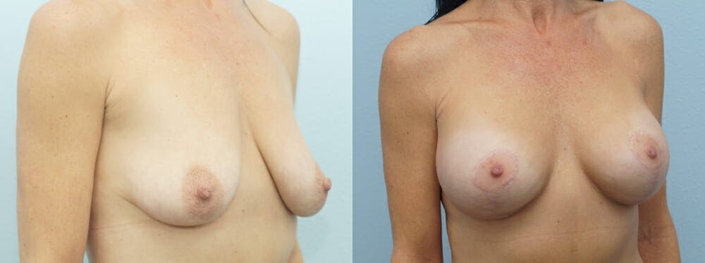 Breast Lift With Implants Gallery - Patient 47434237 - Image 5