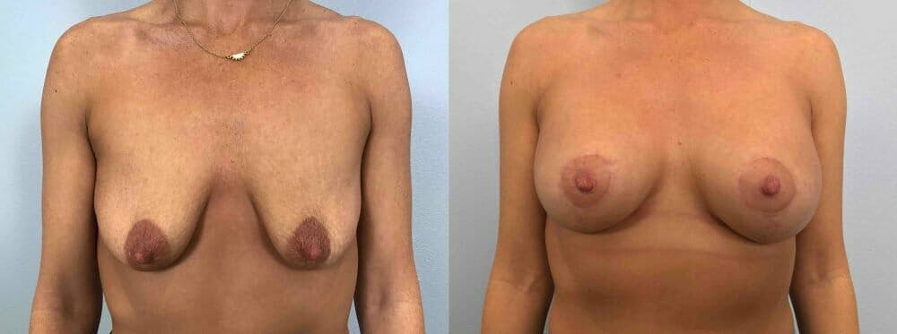 Breast Lift With Implants Gallery - Patient 47434371 - Image 1