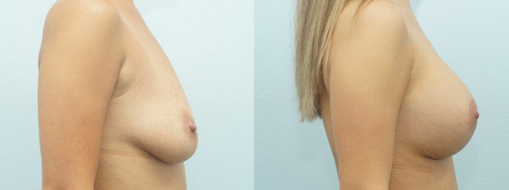 Breast Lift With Implants Gallery - Patient 47434380 - Image 3