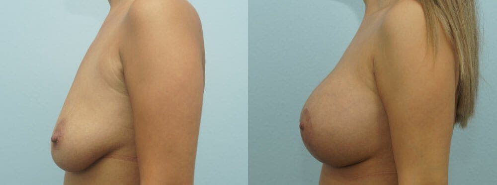 Breast Lift With Implants Gallery - Patient 47434380 - Image 5
