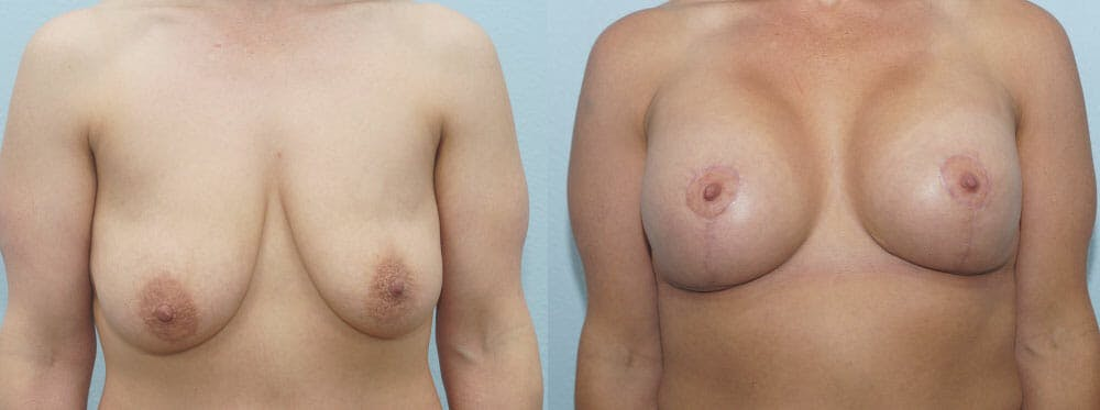 Breast Lift With Implants Gallery - Patient 47434386 - Image 1