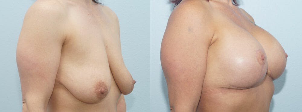 Breast Lift With Implants Gallery - Patient 47434386 - Image 2