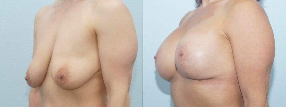 Breast Lift With Implants Gallery - Patient 47434386 - Image 4