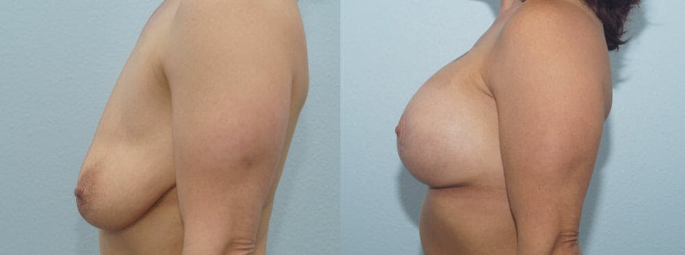Breast Lift With Implants Gallery - Patient 47434386 - Image 5