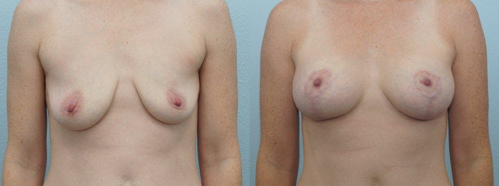 Breast Lift With Implants Gallery - Patient 47434392 - Image 1