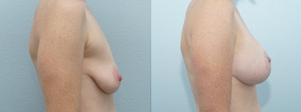 Breast Lift With Implants Gallery - Patient 47434392 - Image 3