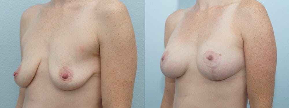 Breast Lift With Implants Gallery - Patient 47434392 - Image 4