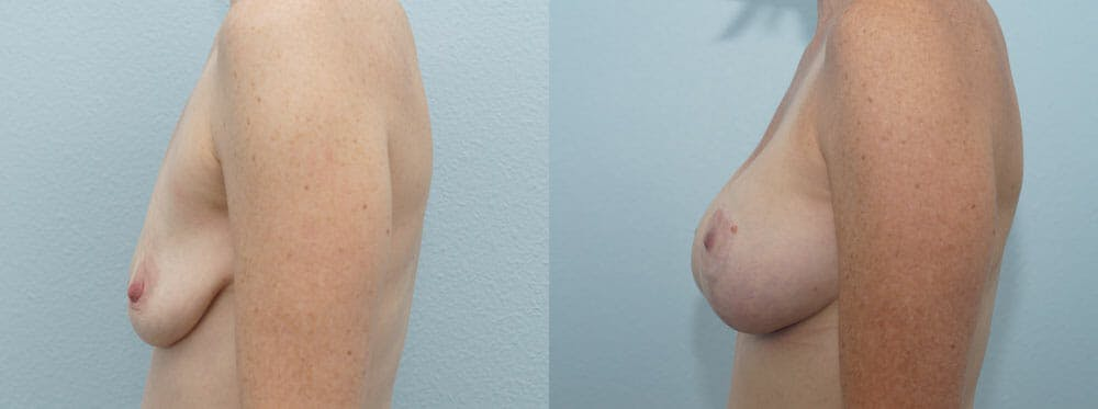 Breast Lift With Implants Gallery - Patient 47434392 - Image 5