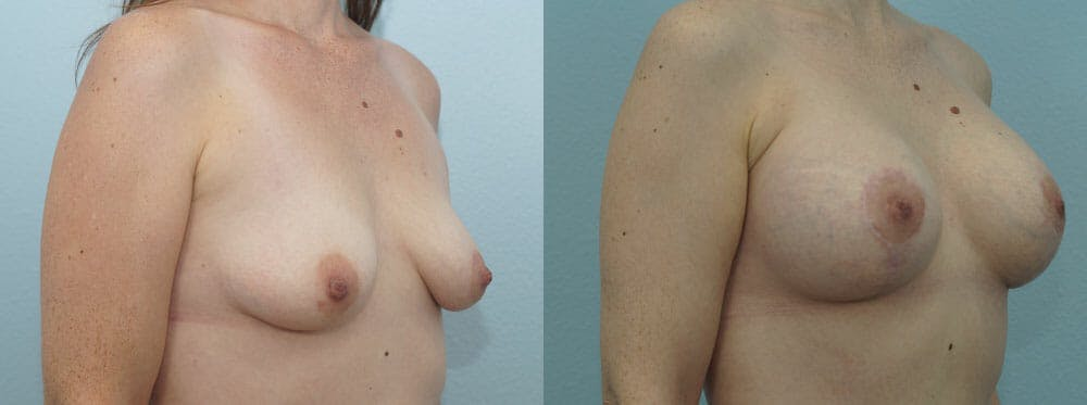Breast Lift With Implants Gallery - Patient 47434395 - Image 2