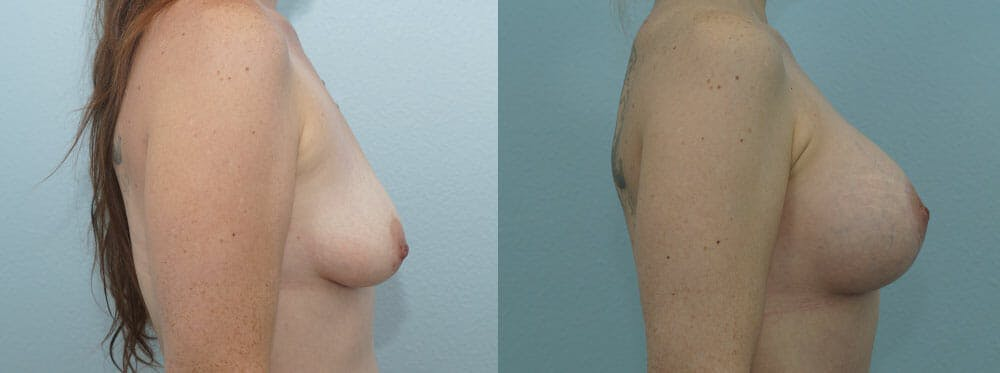 Breast Lift With Implants Gallery - Patient 47434395 - Image 3