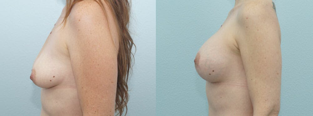 Breast Lift With Implants Gallery - Patient 47434395 - Image 5
