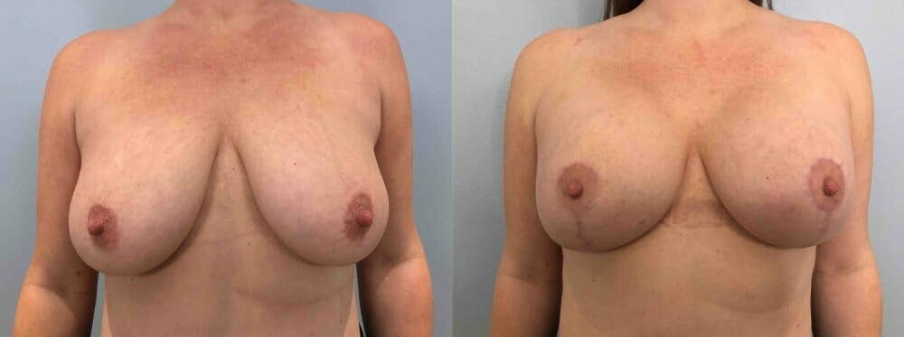 Breast Lift With Implants Gallery - Patient 47434407 - Image 1