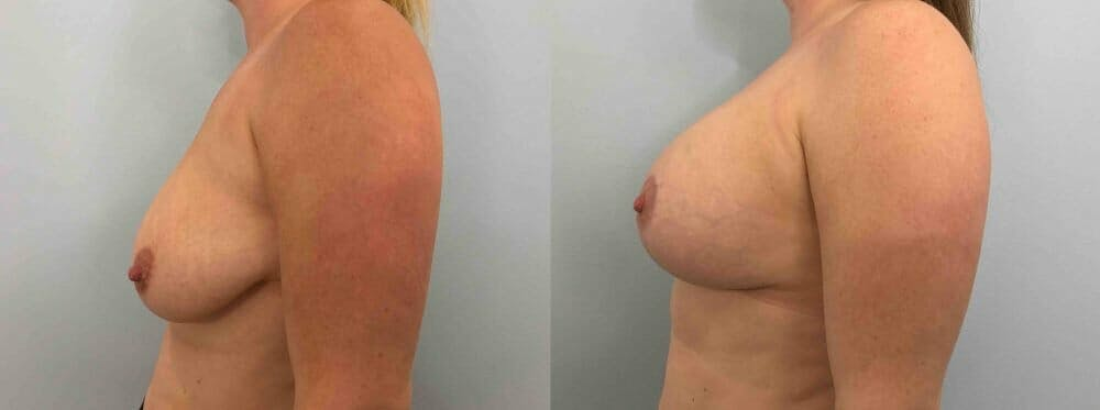 Breast Lift With Implants Gallery - Patient 47434407 - Image 3