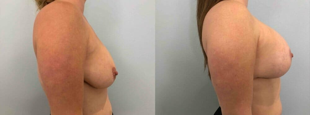 Breast Lift With Implants Gallery - Patient 47434407 - Image 5
