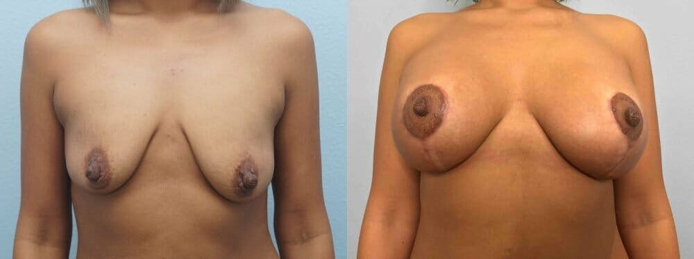 Breast Lift With Implants Gallery - Patient 47434409 - Image 1