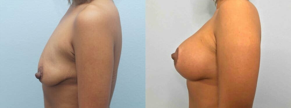 Breast Lift With Implants Gallery - Patient 47434409 - Image 3