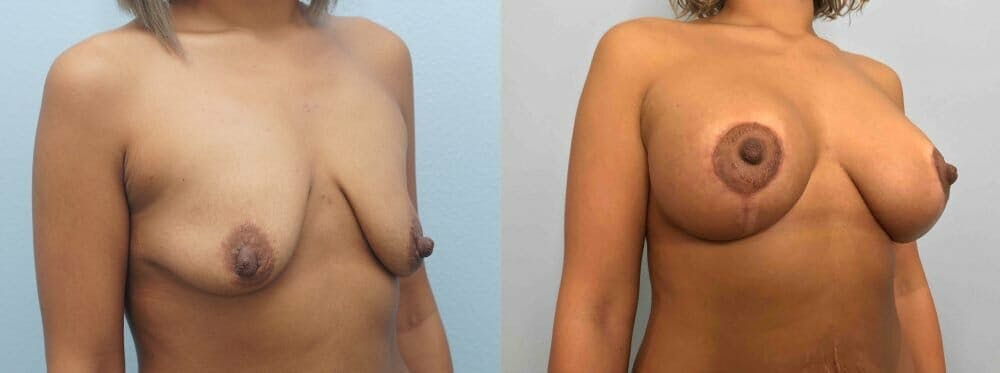 Breast Lift With Implants Gallery - Patient 47434409 - Image 4