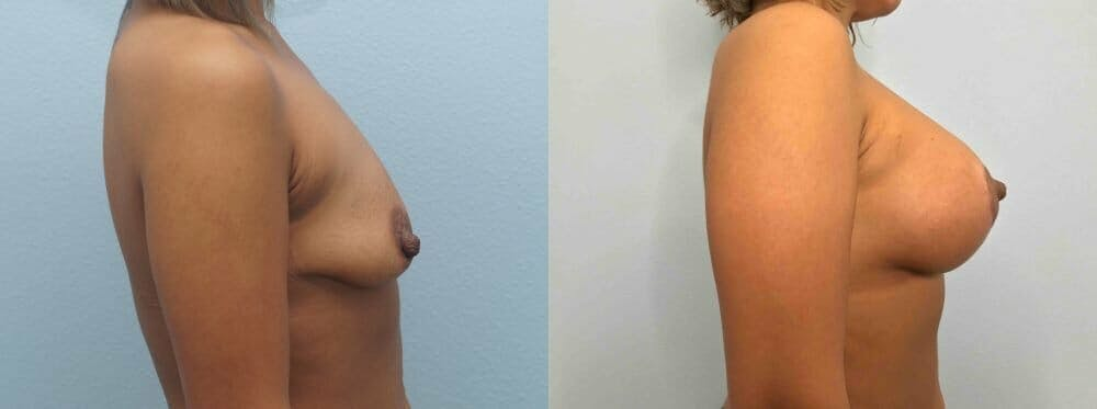 Breast Lift With Implants Gallery - Patient 47434409 - Image 5