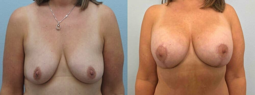 Breast Lift With Implants Gallery - Patient 47434414 - Image 1