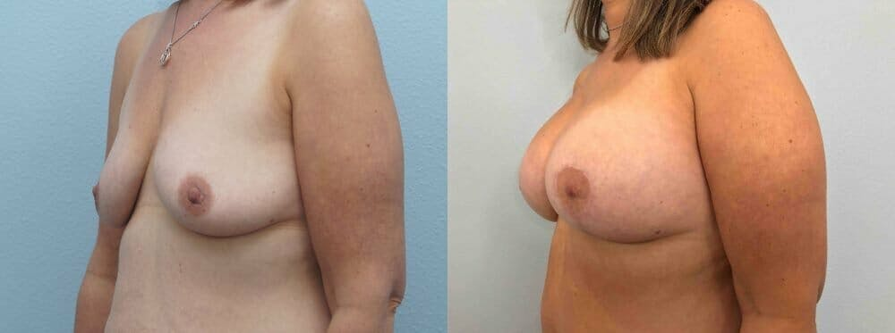 Breast Lift With Implants Gallery - Patient 47434414 - Image 2