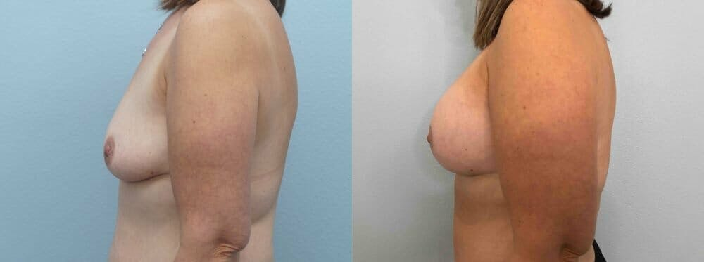 Breast Lift With Implants Gallery - Patient 47434414 - Image 3