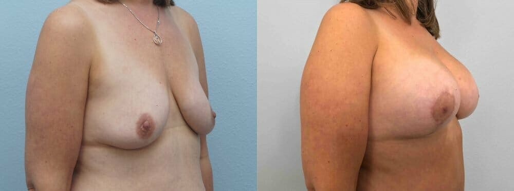 Breast Lift With Implants Gallery - Patient 47434414 - Image 4