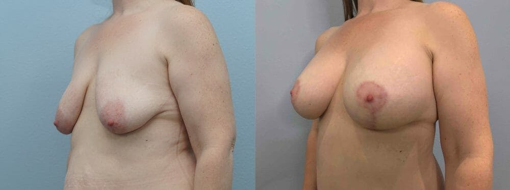 Breast Lift With Implants Gallery - Patient 47434415 - Image 2