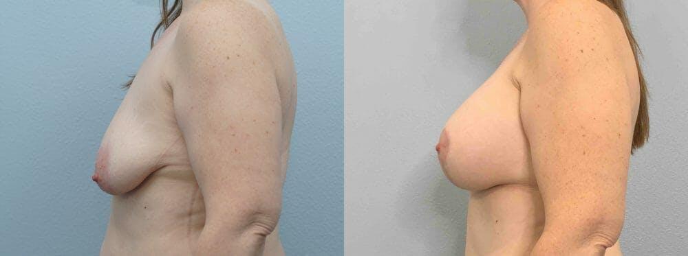 Breast Lift With Implants Gallery - Patient 47434415 - Image 3