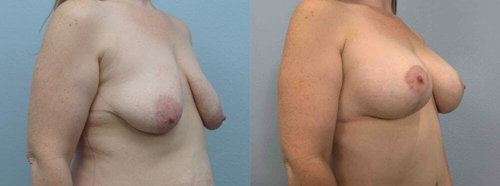 Breast Lift With Implants Gallery - Patient 47434415 - Image 4